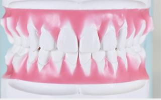 リンガル矯正(舌側矯正・裏側矯正)インダイレクトコア製作用のセットアップモデル